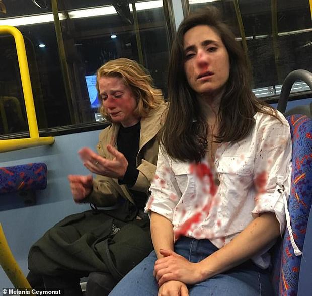 Hai cô gái đồng tính bị hành hung dã man chỉ vì không chịu hôn nhau cho những thanh niên trên xe buýt xem - Ảnh 1.