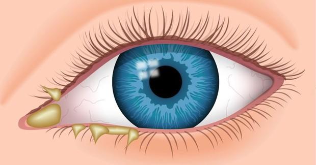 Nguy cơ mắc căn bệnh viêm mắt này rất cao khi đi bơi trong mùa hè, ai cũng cần lưu ý - Ảnh 2.