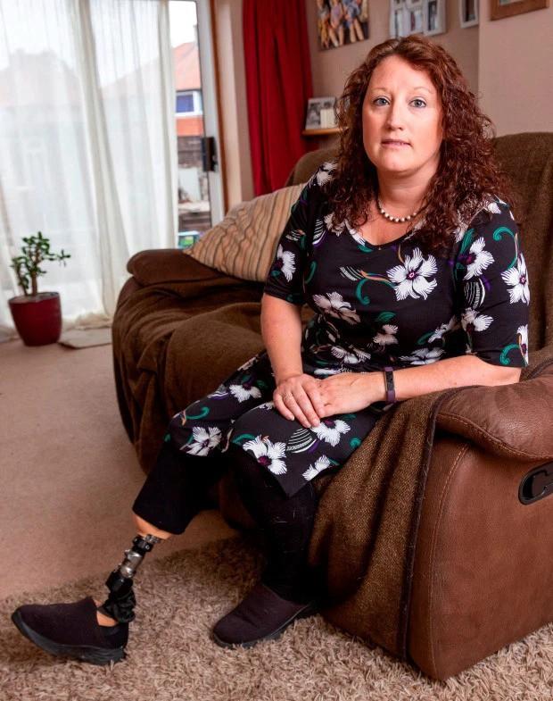 Bị lọ nước hoa rơi trúng chân, người phụ nữ chịu đựng nỗi đau suốt 2 năm trước khi buộc phải cắt bỏ một phần chân - Ảnh 1.