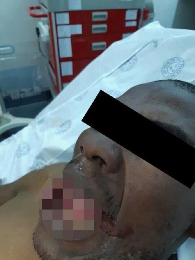 Bị tấn công khi đang trực ca trong bệnh viện, nữ bác sĩ nhanh trí phản ứng khiến kẻ hiếp dâm phải bỏ chạy, đau điếng người cũng không kêu được - Ảnh 1.