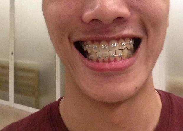 Thêm 1 ca niềng răng lên đời nhan sắc từ cậu bạn tự ti với nụ cười của chính mình - Ảnh 4.