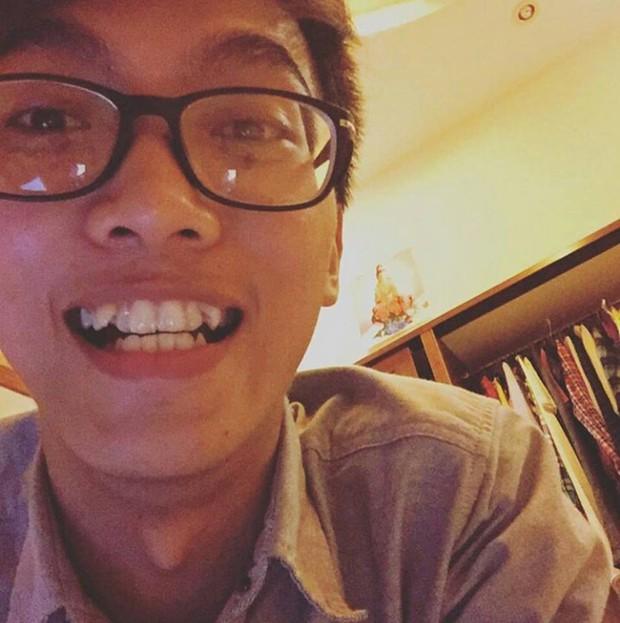 Thêm 1 ca niềng răng lên đời nhan sắc từ cậu bạn tự ti với nụ cười của chính mình - Ảnh 2.
