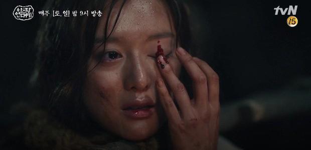 Kim Ji Won bùng nổ diễn xuất: Tự cắn đứt tay rồi bôi máu lên mắt, triệu hồi sói thần ngay tập 4 Niên Sử Kí Arthdal! - Ảnh 2.
