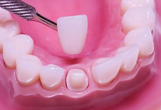 Những điều tưởng thế mà không phải thế về công nghệ răng sứ đang được giới trẻ lẫn các sao ưa chuộng - Ảnh 1.