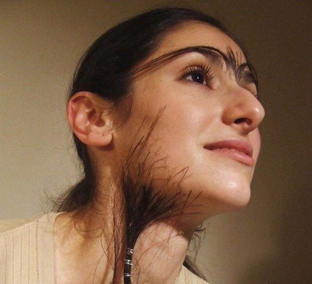 Con gái lông rậm nên cẩn thận với những căn bệnh rất dễ mắc phải này - Ảnh 1.