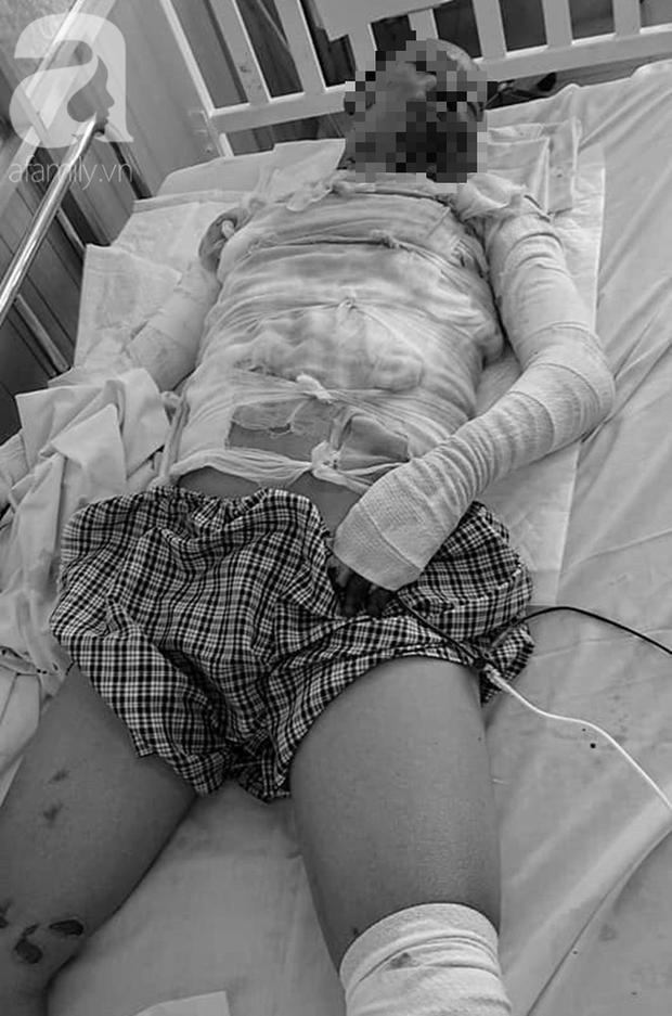 Nổ bình gas mini trong lúc nấu ăn, người đàn ông bị phỏng toàn thân, nguy kịch - Ảnh 1.