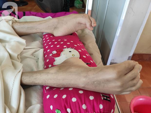 Con trai sắp lấy vợ bị tai nạn nằm một chỗ, người mẹ già ngã quỵ khi tiếp tục biết chồng ung thư mà không đủ tiền chữa - Ảnh 8.