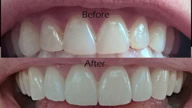 Irene (Red Velvet) cũng sứ hóa hàm răng nhưng không cần dùng cách phải mài răng bé xíu mà vẫn đẹp - Ảnh 5.