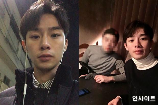 Đừng coi thường việc nuốt phải nước bể bơi, một thanh niên Hàn đã bị viêm phổi nghiêm trọng sau khi gặp phải điều này - Ảnh 1.