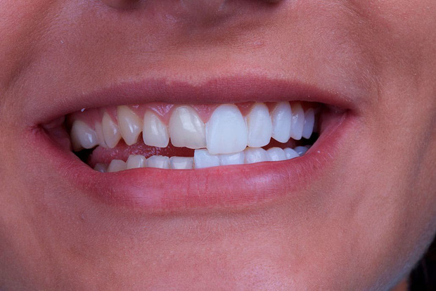 Irene (Red Velvet) cũng sứ hóa hàm răng nhưng không cần dùng cách phải mài răng bé xíu mà vẫn đẹp - Ảnh 6.