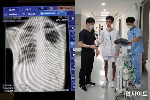 Đừng coi thường việc nuốt phải nước bể bơi, một thanh niên Hàn đã bị viêm phổi nghiêm trọng sau khi gặp phải điều này - Ảnh 2.
