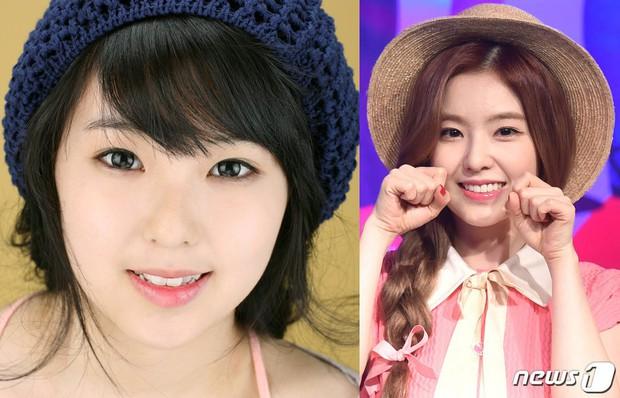Irene (Red Velvet) cũng sứ hóa hàm răng nhưng không cần dùng cách phải mài răng bé xíu mà vẫn đẹp - Ảnh 3.