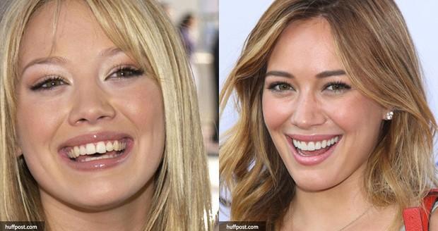 Cái giá của sự đẹp: Cận cảnh quy trình bọc răng sứ khiến người xem cũng phải thót tim - Ảnh 1.