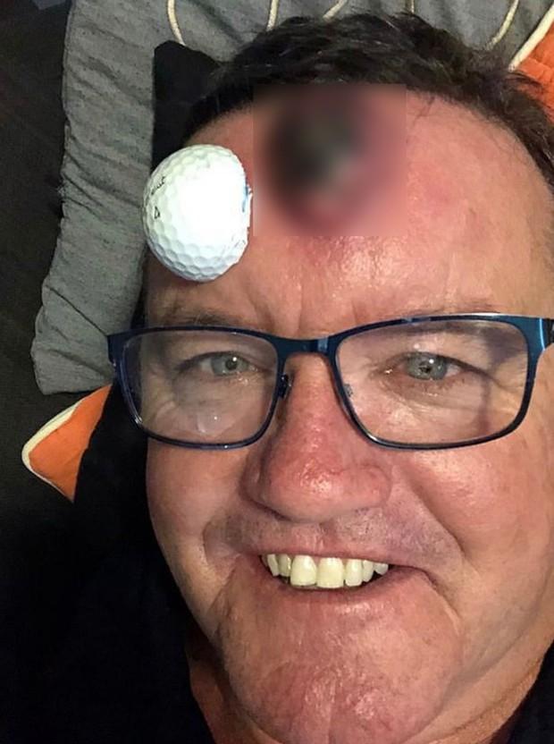 Từ một cục mụn nhỏ, người đàn ông bỗng khổ sở khi mụn to lên như quả bóng golf trên trán - Ảnh 1.