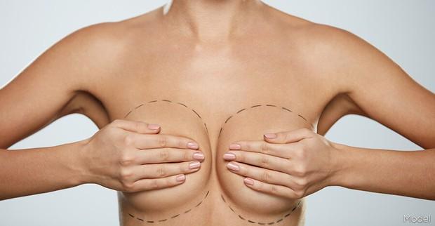 Nâng ngực xong bao lâu thì đủ tự nhiên để tự tin khoe dáng? - Ảnh 2.