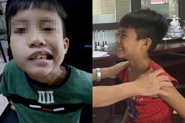 Bé trai 8 tuổi liệt mặt, méo miệng do thói quen dùng điều hoà sai cách - Ảnh 1.