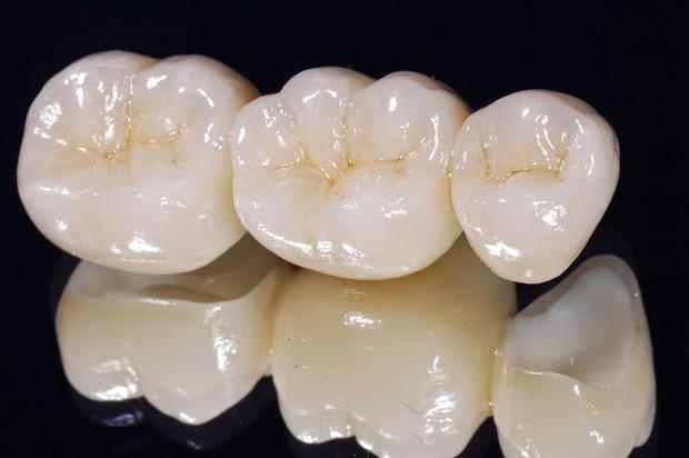 Chuyên gia chỉ ra sự khác biệt giữa hai phương pháp thẩm mỹ răng hot nhất hiện nay: bọc răng sứ và dán sứ veneer - Ảnh 1.