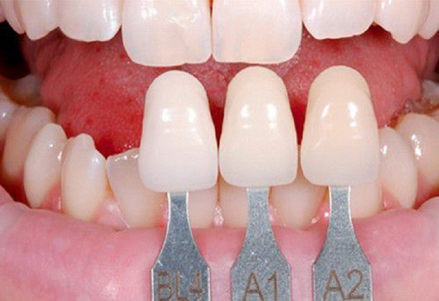 Chuyên gia chỉ ra sự khác biệt giữa hai phương pháp thẩm mỹ răng hot nhất hiện nay: bọc răng sứ và dán sứ veneer - Ảnh 4.