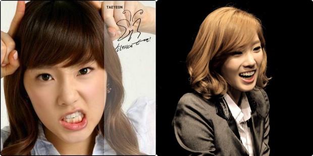 Xem loạt ảnh Before - After này mới thấy công nghệ thẩm mỹ răng đã giúp các idol xứ Hàn lên đời nhan sắc như thế nào - Ảnh 1.