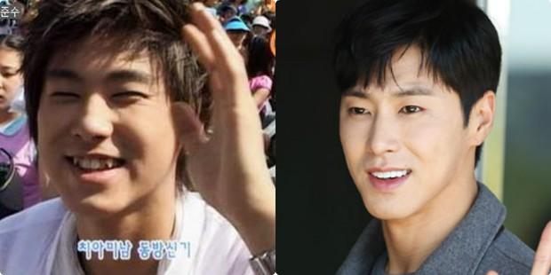 Xem loạt ảnh Before - After này mới thấy công nghệ thẩm mỹ răng đã giúp các idol xứ Hàn lên đời nhan sắc như thế nào - Ảnh 10.
