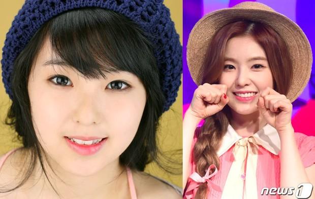 Xem loạt ảnh Before - After này mới thấy công nghệ thẩm mỹ răng đã giúp các idol xứ Hàn lên đời nhan sắc như thế nào - Ảnh 13.