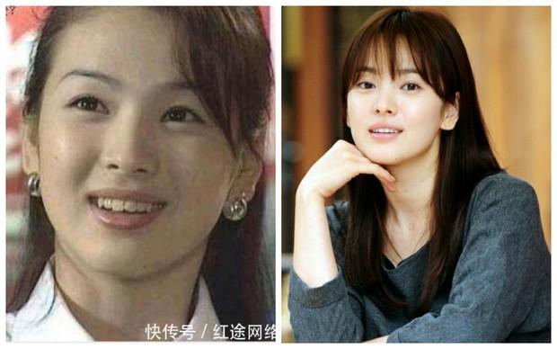 Xem loạt ảnh Before - After này mới thấy công nghệ thẩm mỹ răng đã giúp các idol xứ Hàn lên đời nhan sắc như thế nào - Ảnh 15.