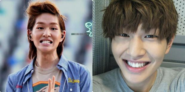 Xem loạt ảnh Before - After này mới thấy công nghệ thẩm mỹ răng đã giúp các idol xứ Hàn lên đời nhan sắc như thế nào - Ảnh 2.