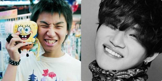 Xem loạt ảnh Before - After này mới thấy công nghệ thẩm mỹ răng đã giúp các idol xứ Hàn lên đời nhan sắc như thế nào - Ảnh 3.
