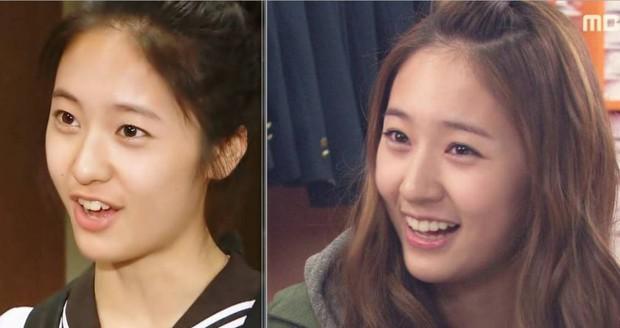 Xem loạt ảnh Before - After này mới thấy công nghệ thẩm mỹ răng đã giúp các idol xứ Hàn lên đời nhan sắc như thế nào - Ảnh 9.