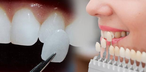 Xem loạt ảnh Before - After này mới thấy công nghệ thẩm mỹ răng đã giúp các idol xứ Hàn lên đời nhan sắc như thế nào - Ảnh 18.