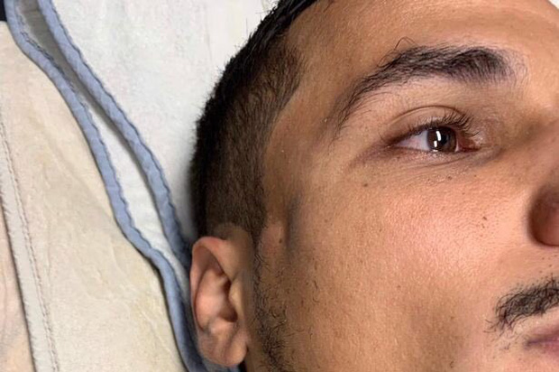 Kinh hoàng: Cầu thủ có đai đen Taekwondo tung đòn chỏ khiến đội bạn nứt xương sọ, lõm cả mặt - Ảnh 3.
