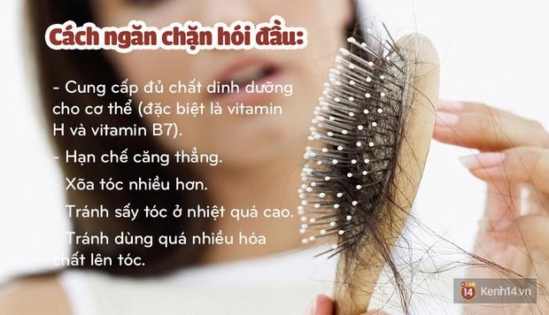 Quốc Trường tiết lộ chăm dưỡng cả tháng trời để chữa hói, và đây là những cách dưỡng giúp mọc tóc bạn có thể thử - Ảnh 5.
