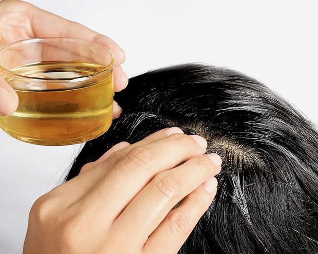 Quốc Trường tiết lộ chăm dưỡng cả tháng trời để chữa hói, và đây là những cách dưỡng giúp mọc tóc bạn có thể thử - Ảnh 3.