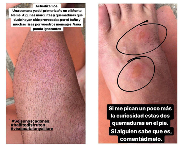 Sốc: Nhập viện hàng loạt sau khi bơi, hồ nước xanh lam nổi tiếng Tây Ban Nha này chính là hiểm họa với du khách - Ảnh 11.