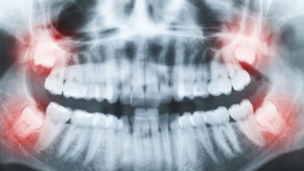 Vừa chiến thắng bệnh ung thư, người phụ nữ lại mất mạng vì... nhổ răng khôn - Ảnh 2.