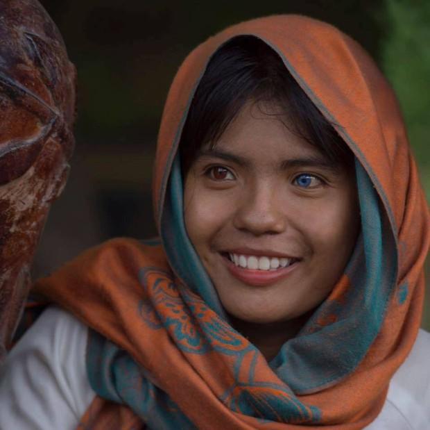 Trúng đại học, nữ sinh có đôi mắt 2 màu chọn cao đẳng - Ảnh 8.