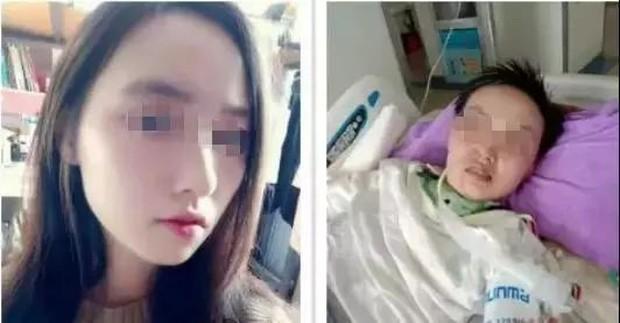 Chỉ vì một vết muỗi cắn, cô gái 20 tuổi phải nằm viện chăm sóc đặc biệt tới 11 tháng - Ảnh 2.
