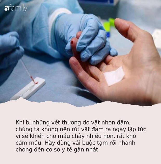 """Người phụ nữ gặp nạn vì bị cá """"dính chặt"""" vào tay, vào viện cấp cứu bác sĩ lại khen hết lời vì đã làm tốt việc này - Ảnh 3."""