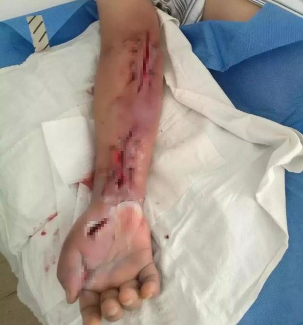 """Người phụ nữ gặp nạn vì bị cá """"dính chặt"""" vào tay, vào viện cấp cứu bác sĩ lại khen hết lời vì đã làm tốt việc này - Ảnh 5."""