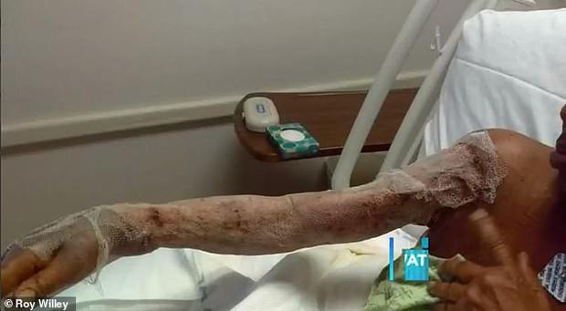 Người phụ nữ bị nhiễm vi khuẩn ăn thịt người sau khi đi công viên nước - Ảnh 3.