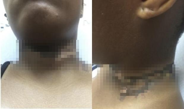 Vô tình để vòng cổ chạm vào dây sạc smartphone, cô gái bị bỏng độ II phải nhập viện - Ảnh 1.