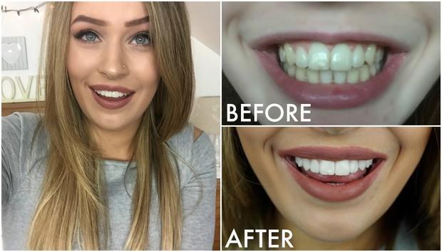 Tẩy trắng răng bằng máy ngậm trắng đang hot hiện nay có thực sự hiệu quả? - Ảnh 4.