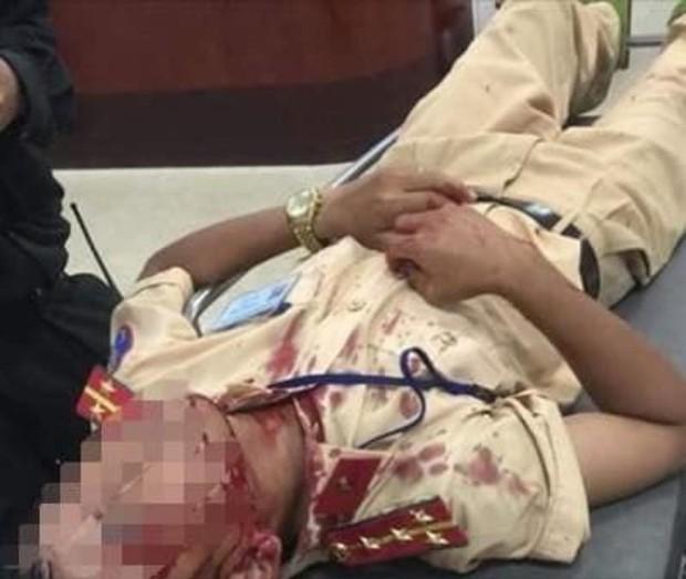 Bị dừng xe, tài xế cầm đá chọi CSGT nhập viện - Ảnh 1.