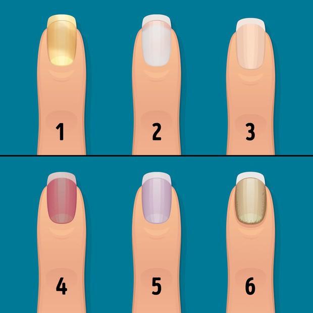 Nhận biết tình trạng sức khỏe của bạn thông qua các đặc điểm trên móng tay - Ảnh 1.