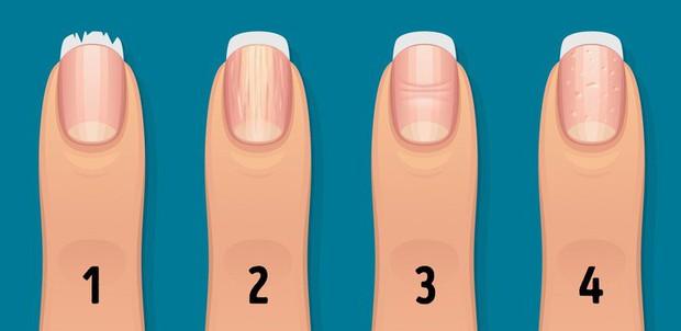 Nhận biết tình trạng sức khỏe của bạn thông qua các đặc điểm trên móng tay - Ảnh 2.