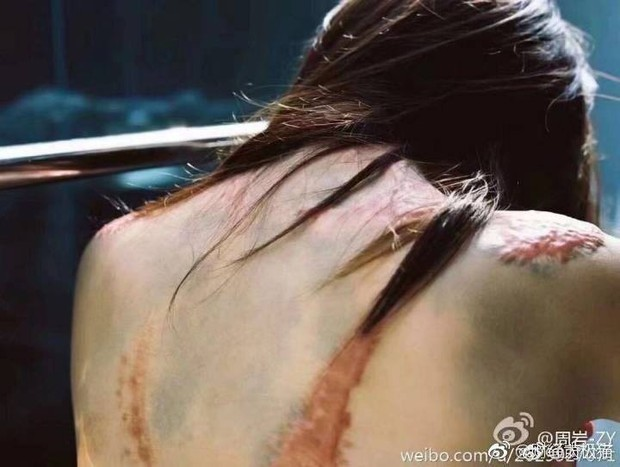 Xót xa bộ ảnh nữ sinh với cơ thể đầy sẹo vì bị tạt axit do từ chối lời tỏ tình lần thứ hai của kẻ cuồng yêu - Ảnh 5.