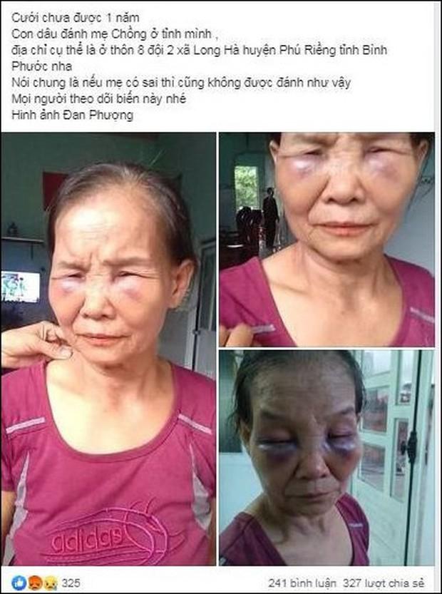Nàng dâu mới sinh 3 tháng lên tiếng sau khi bị tố đánh mẹ chồng thâm tím mặt mày - Ảnh 2.