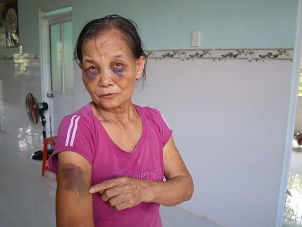 Nàng dâu mới sinh 3 tháng lên tiếng sau khi bị tố đánh mẹ chồng thâm tím mặt mày - Ảnh 1.