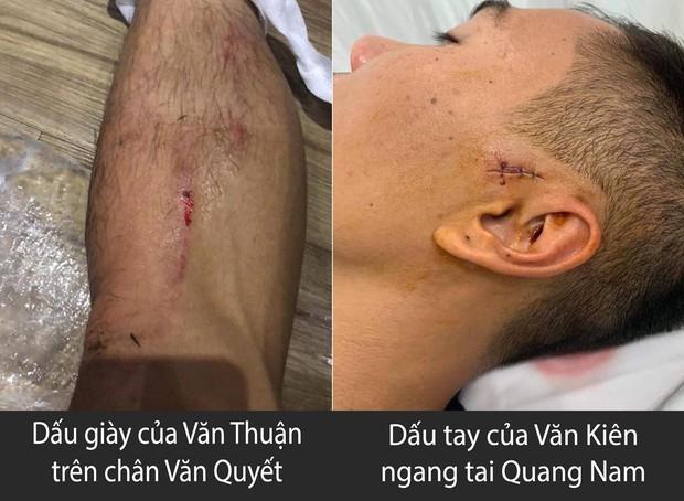 Hãi hùng với chấn thương của các cầu thủ thi đấu V.League: Ai nói bóng đá Việt nhàm chán và thiếu lửa? - Ảnh 1.