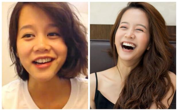 Đâu chỉ có ở Hàn, showbiz Việt cũng có cả loạt sao lột xác, khoe nụ cười đắt giá nhờ thẩm mỹ răng - Ảnh 14.